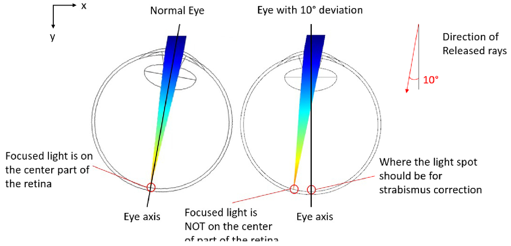 PMMA-based ophthalmic contact lens for vision correction of